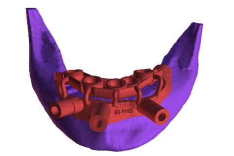 Dental Mold of implants