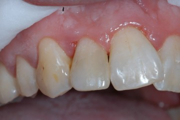 After Tooth Colored Restorations