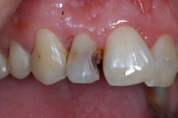 Before Tooth Colored Restorations