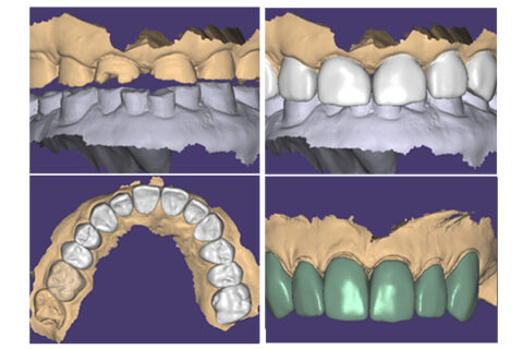 Different teeth images