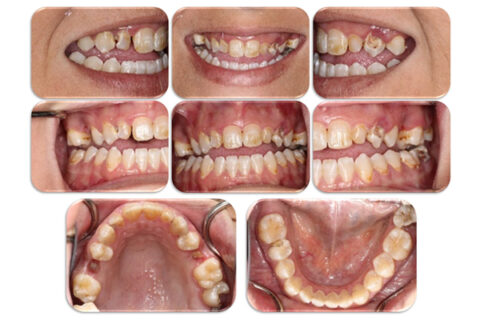 Image of diffent teeth with decay