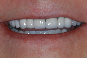 removable-partial-dentures-after