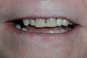 removable-partial-dentures-before